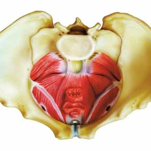 carrying with a weakened pelvic floor
